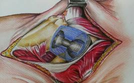 Ilustración de prótesis de cadera