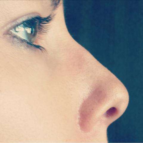 correccion desvio tabique nasal